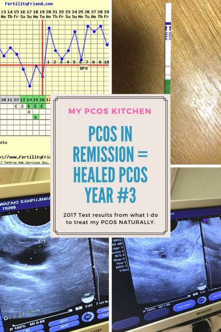 Are you sure you have PCOS? September 2017 Health Update