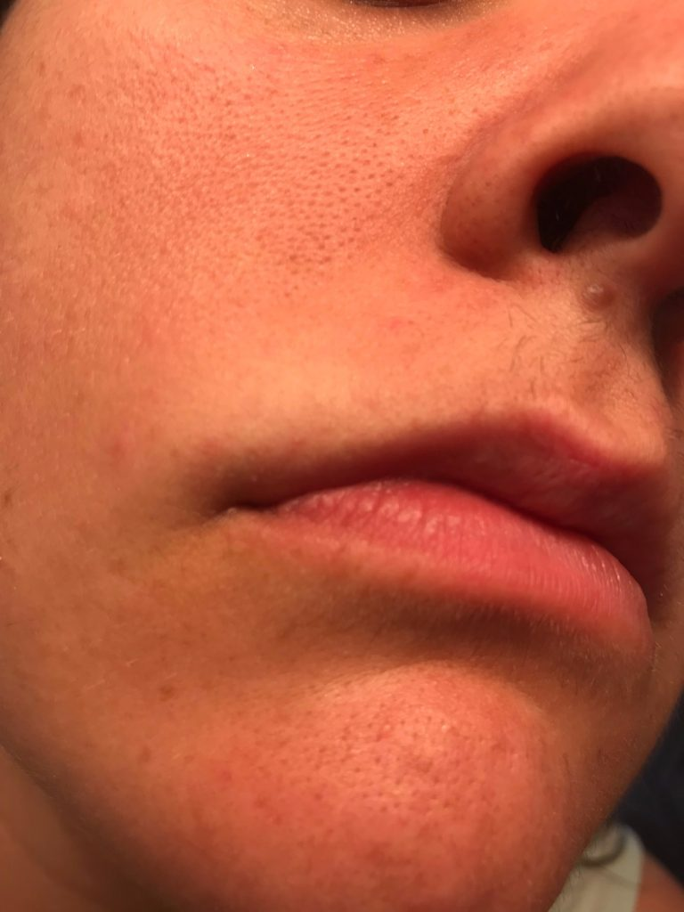 PCOS Facial Hair & Electrolysis - How I deal with it