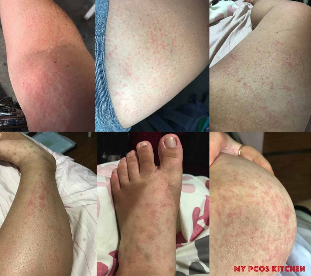 Image showing the keto rash on chest, back, legs, breast, thighs, arms and feet.